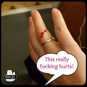 mouse injury bloody finger