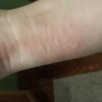 Nettle blisters
