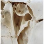 close up of skull bone of the jersey devil-deer skeleton