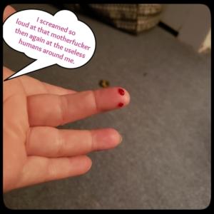 bleeding finger from mouse bite